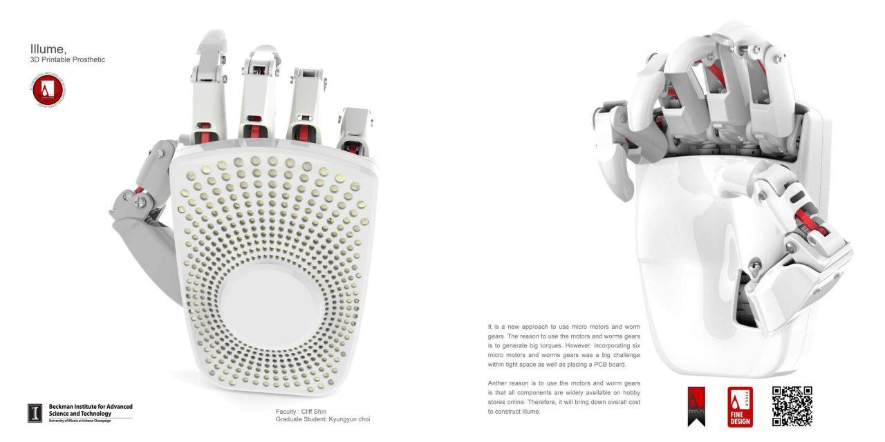 Photo of Illume, a 3D Printable Prosthetic