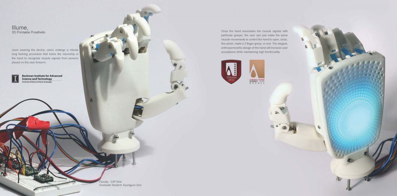 Closeup of Illume, a 3D Printable Prosthetic